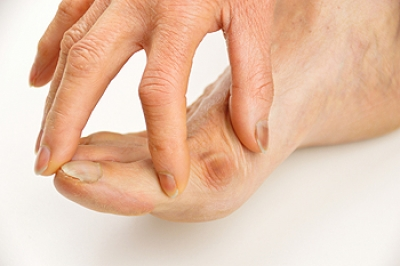 The Right Shoes may Make a Difference for Bunions