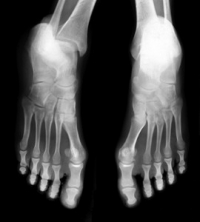 How Do Stress Fractures Develop?