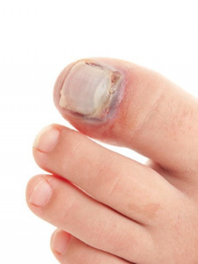 Possible Causes of Broken Toes