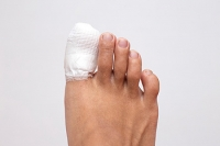 How Can I Support My Broken Toe As It Heals?