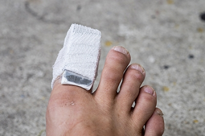 Broken Toes and Maintaining Cardiovascular Health